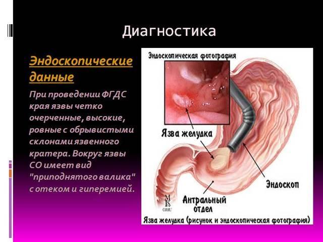 Язва желудка: симптомы, причины, диагностика
