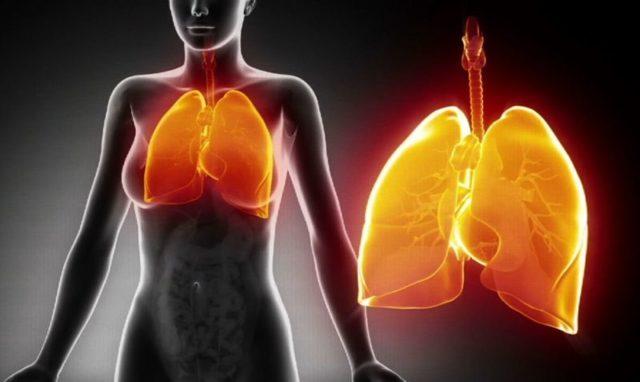 Пневмония: причины, симптомы, к какому врачу обращаться