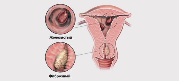 Полипы в матке: причины образования, симптомы, факторы риска, лечение и профилактика
