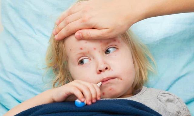 Иммунитет от ветрянки у детей и взрослых