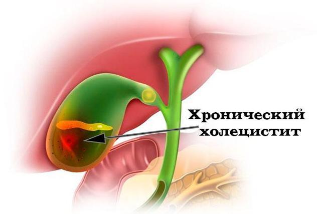Температура при воспалении желчного пузыря или при холецистите: причины симптомы