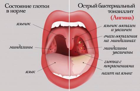Гнойная ангина у взрослых: симптомы, как выглядит, что значит