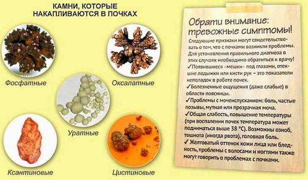 Камни в почках: причины и симптомы
