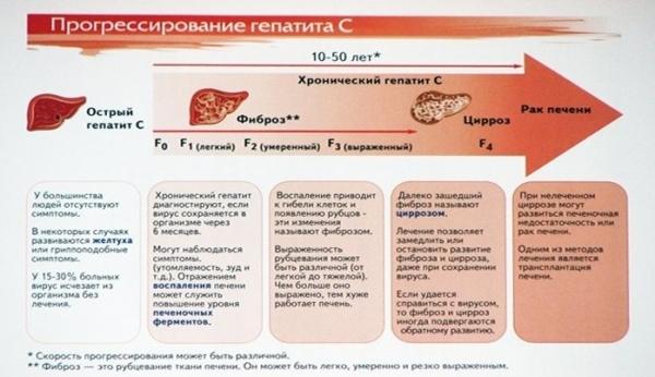 Гепатит c - лечение, симптомы, прогноз, исход, продолжительность жизни