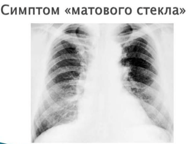 В чем особенности пневмонии при коронавирусе?