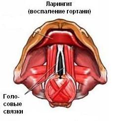 Першит в горле: причины, симптомы, лечение, что делать