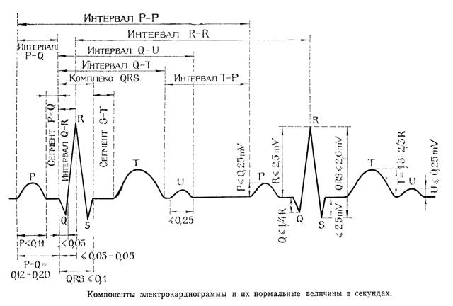 Наложение электродов при ЭКГ