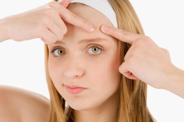 Азелаиновая кислота: действие на кожу, применение от прыщей для лица