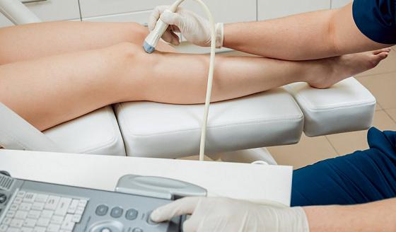 Тромбоз: причины, симптомы, к какому врачу обращаться