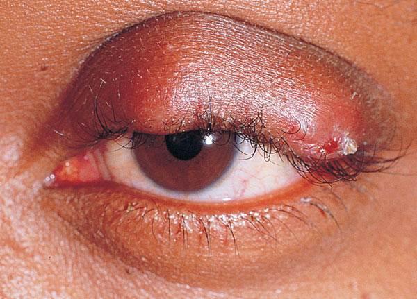 Абсцесс: симптомы, диагностика, лечение