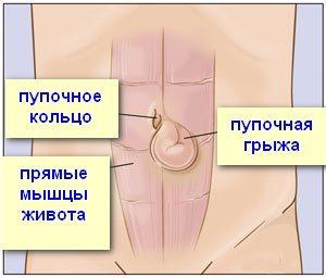 Грыжа: симптомы, причины и лечение
