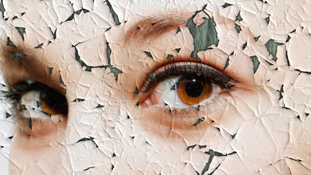 Если кожа на лице шелушится, что делать? Причины шелушения и способы его устранения