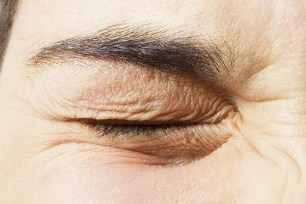 Почему дергается левый глаз? Почему дергается веко, причины, что делать