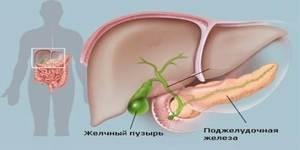 Удаление желчного пузыря: последствия удаления. Лечение после удаления желчного пузыря