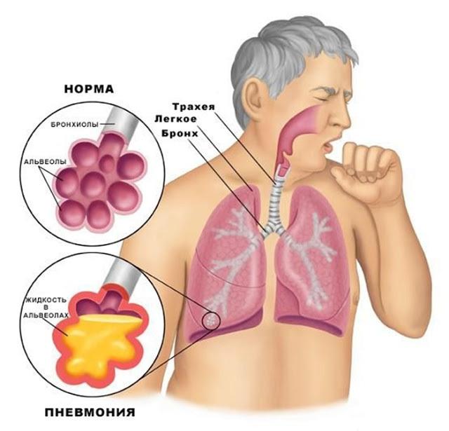 Сколько может длиться кашель после ОРВИ?