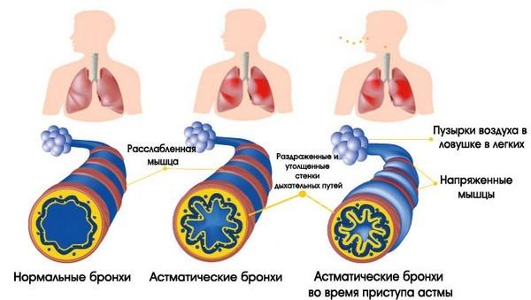 Чувство или ощущение нехватки воздуха: причины и лечение