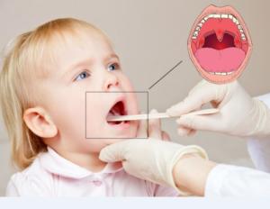 Лакунарная ангина у детей - причины возникновения, симптомы
