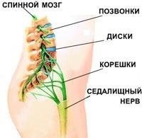Как убрать боль в пояснице? Как снять острую боль в спине?
