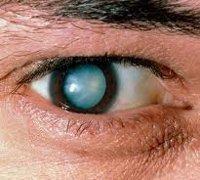 Катаракта: причины, симптомы, лечение