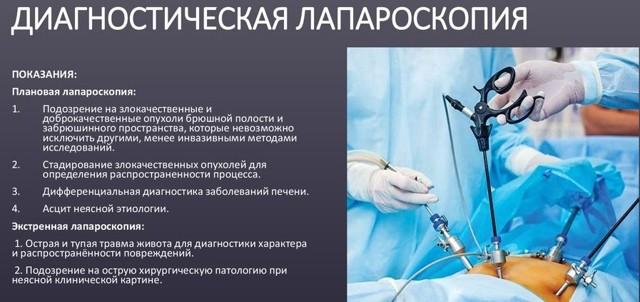 Болезни желчного пузыря: симптомы, диагностика, лечение