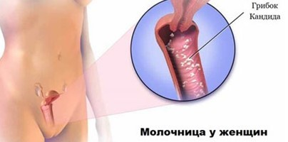 Как избавиться от кандидоза навсегда: советы гинеколога