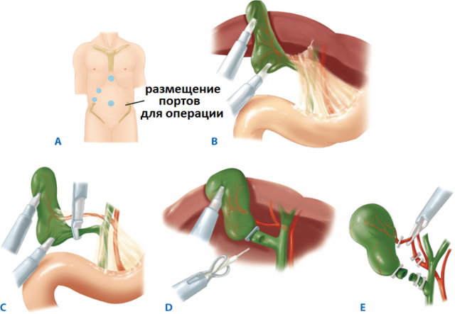 Полип желчного пузыря: виды и опасность, методики лечения