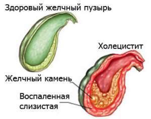 Признаки и симптомы холецистита: где болит, симптомы, причины болей, профилактика
