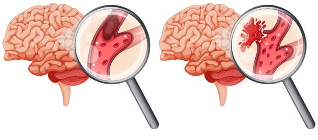 Микроинсульт: симптомы, первые признаки у женщин и мужчин