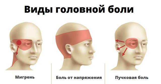 Мигрень: симптомы, классификация и лечение
