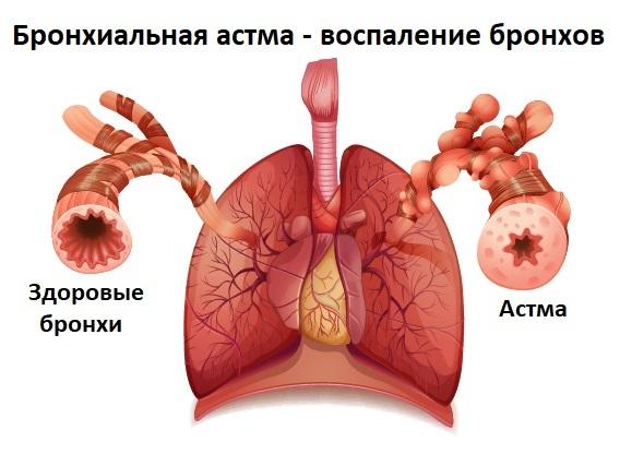 Бронхиальный кашель: причины, симптомы, лечение