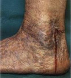 Варикоз нижних конечностей у женщин: причины, симптомы, как лечить