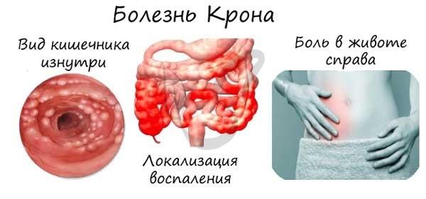 Строение кишечника человека: роль и функции