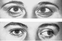 Офтальмоплегическая мигрень: симптомы и лечение