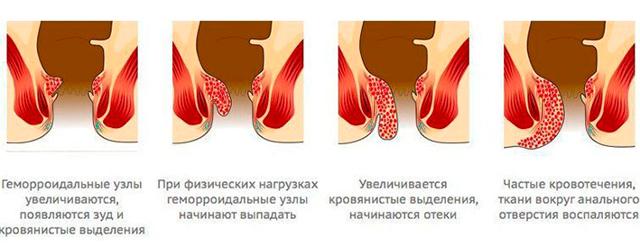 Геморрой: причины, симптомы, лечение