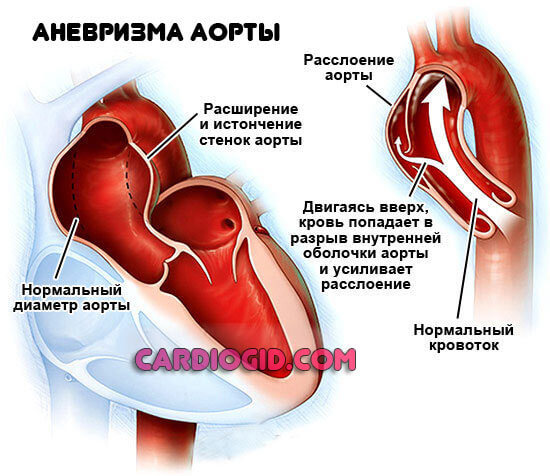 Разница между высоким и низким давлением, артериальным и сердечным
