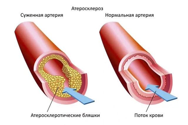 Диагностика атеросклероза аорты: способы, причины болезни