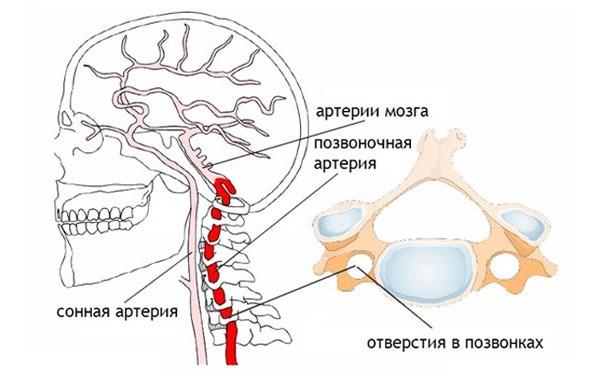 Протрузия и грыжа диска поясничного отдела позвоночника