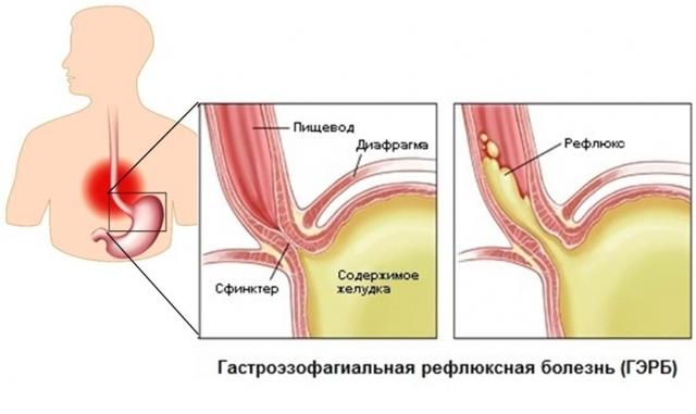Грыжа желудка: что это такое, как лечить, симптомы и причины