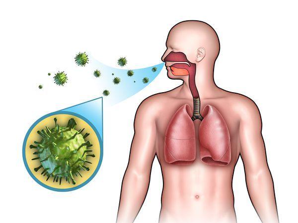ОРВИ - причины, симптомы и лечение у взрослых, профилактика острых респираторных вирусных инфекций