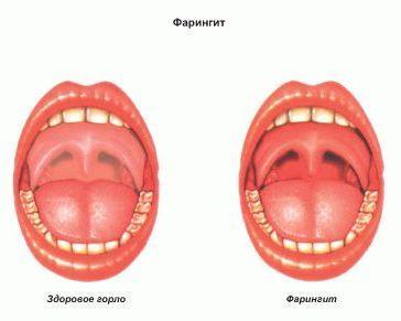 Фарингит: симптомы, причины, как избежать